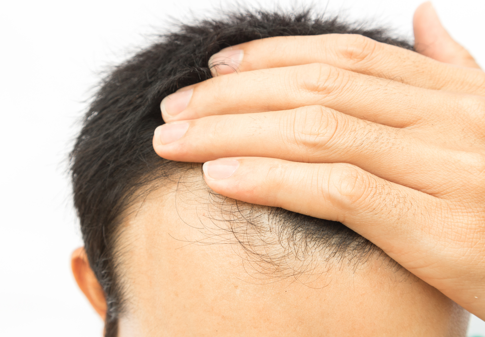 PRP Treatment for Hair Loss Kansas City