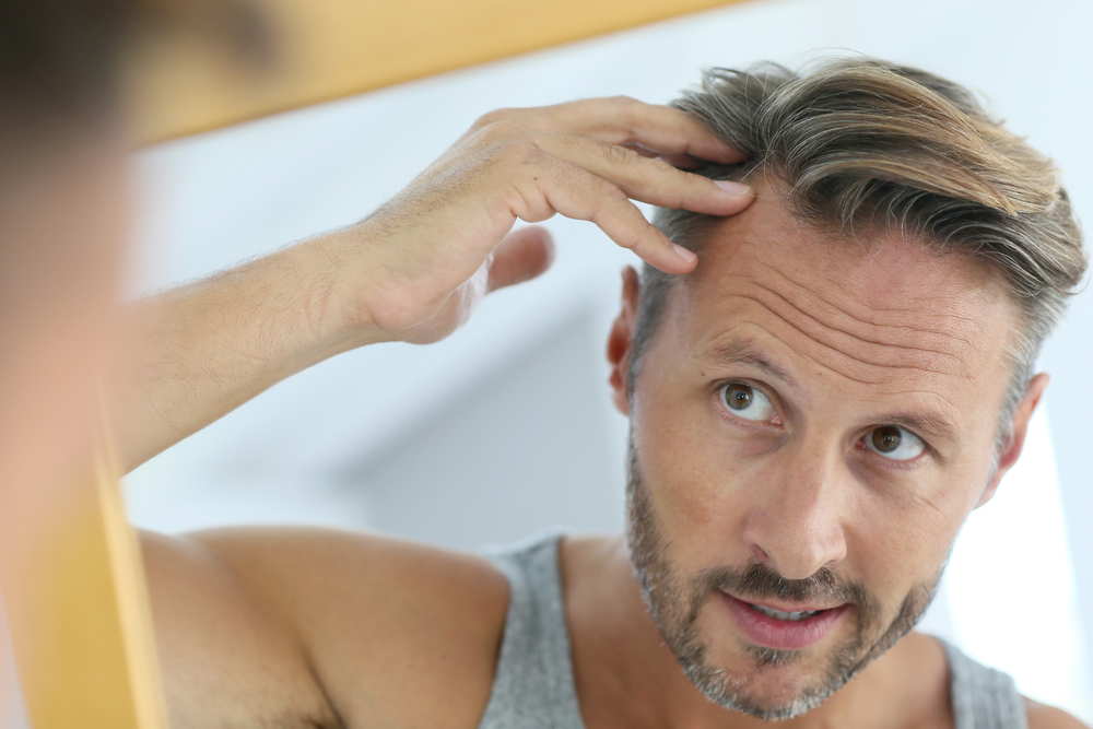 Hair Loss Myths