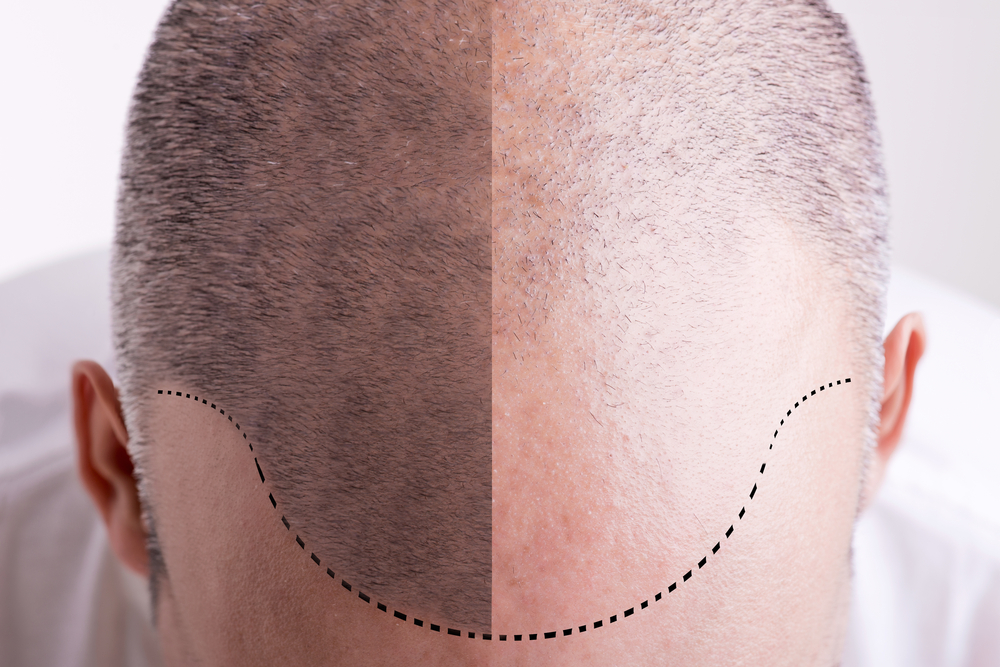Hair Loss PRP Treatments