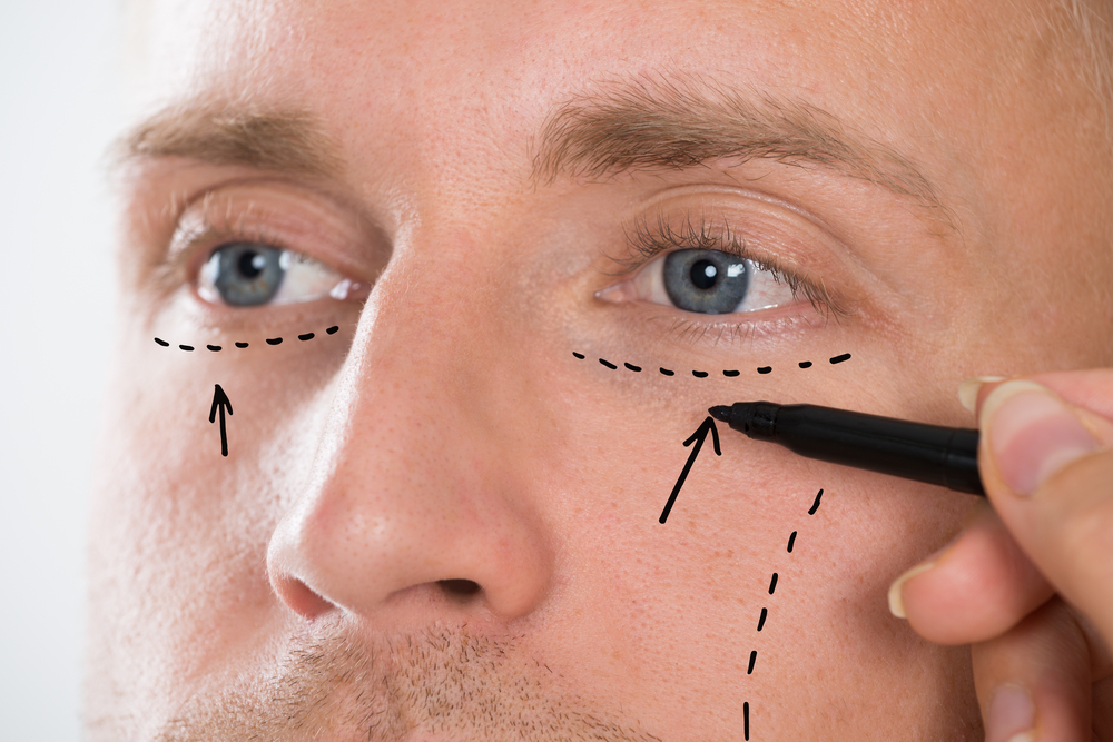 Common Cosmetic Surgery Procedures for Men