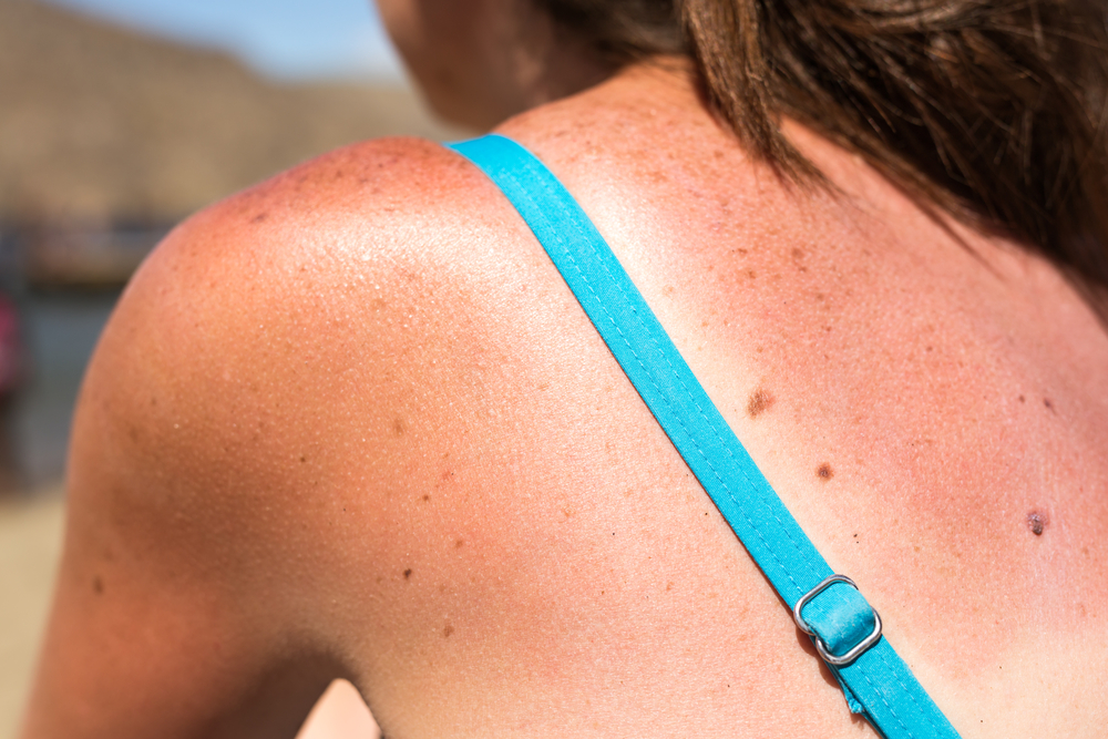 6 Ways to Heal Your Sunburn