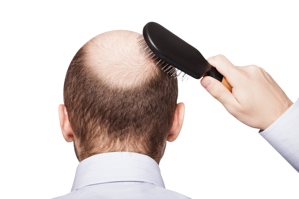 hair-transplants-what-you-need-to-know