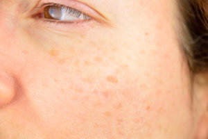 brown-spots-on-face