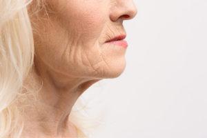 aging-turkey-neck