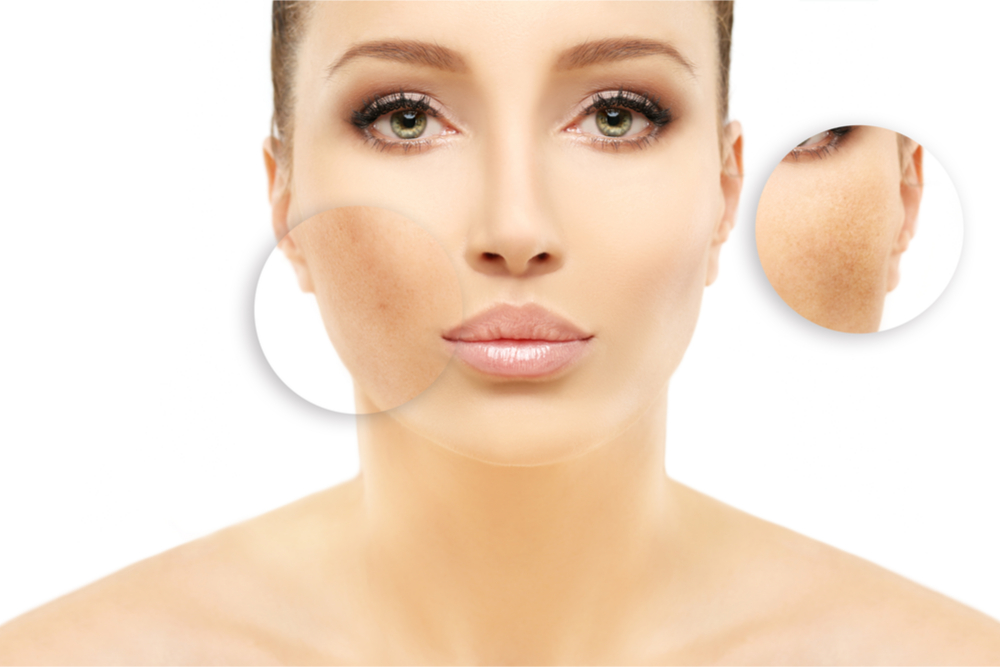 The Causes Of Hyperpigmentation And Treatment Options
