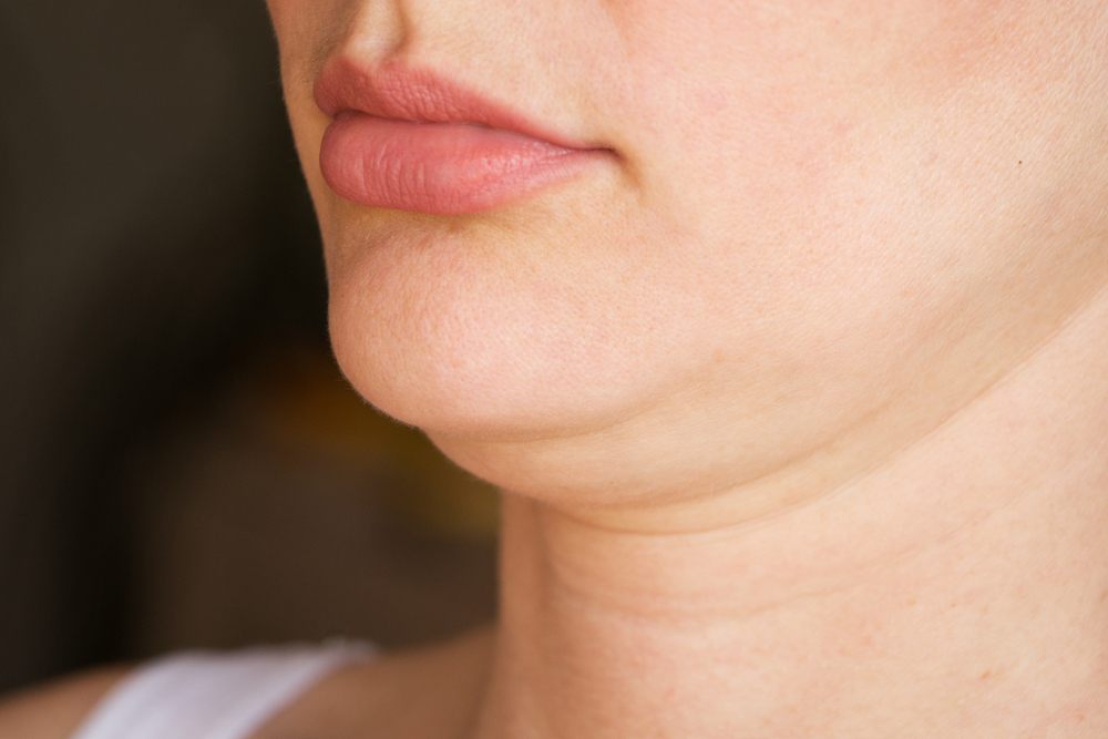 The Pros And Cons Of CoolSculpting Your Double Chin