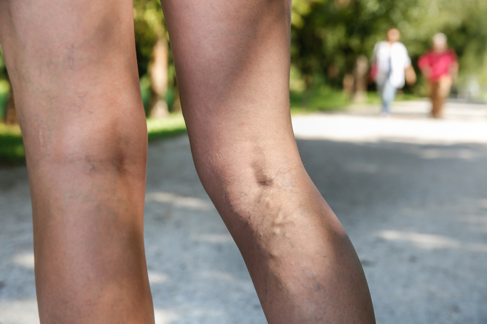 legs-varicose-veins-outdoors