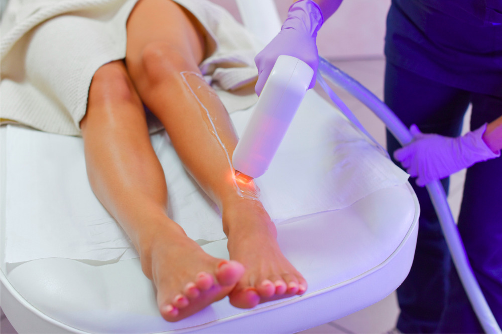 laser-hair-removal-womans-leg