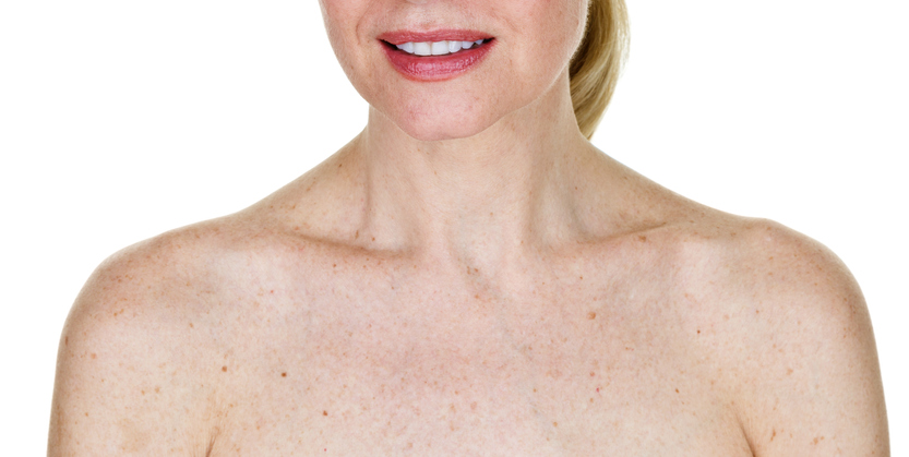 age-spots-neck-and-chest