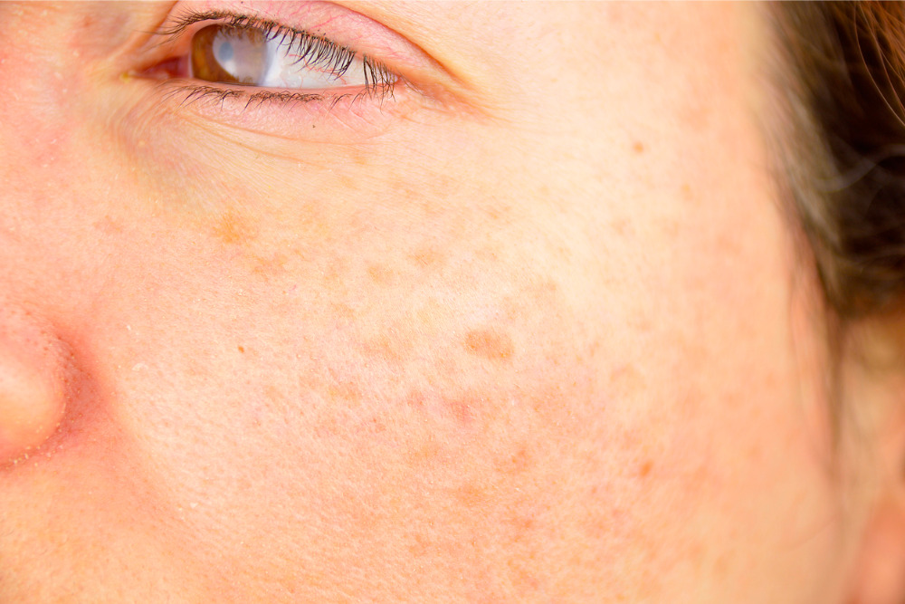 5 Options For Reducing Age Spots On Skin