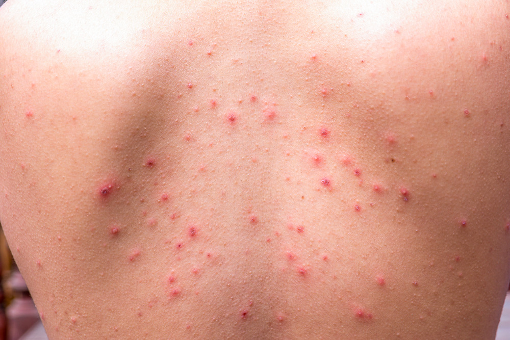 How-to-get-rid-of-back-acne