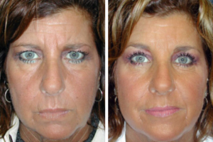 browlift-before-after-vargas-face-and-skin-center