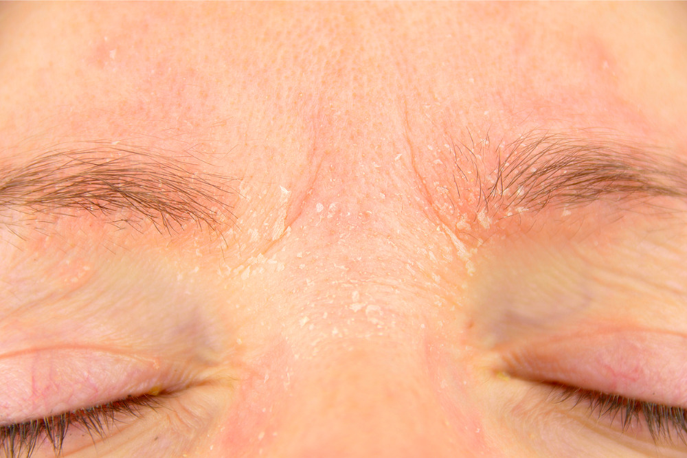 dry-skin-around-eyes