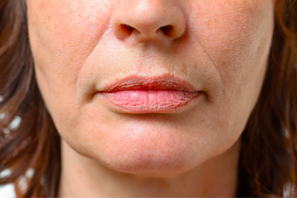 lip-wrinkles-around-the-mouth
