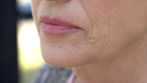 older-woman-lip-wrinkles