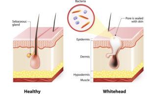 healthy-skin-vs-acne