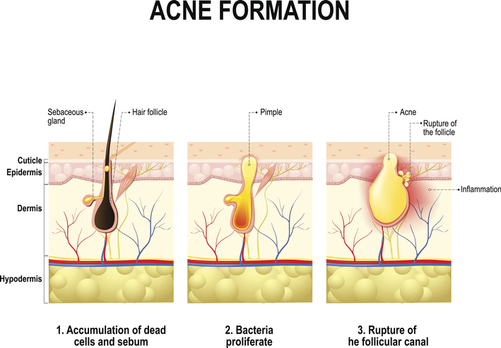 how-acne-forms