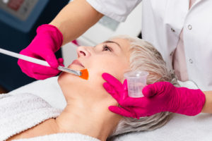 woman-getting-chemical-peel