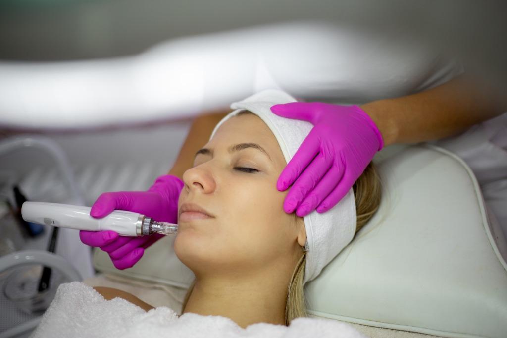 Woman-undergoing-microneedling